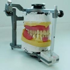 A set of dentures in my practice