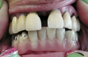 A gap in front teeth
