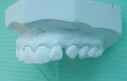 Wax model of teeth for cosmetic veneers
