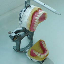 Testing out dentures in my practice
