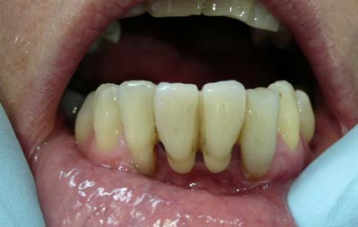 Gum disease on a patient with a bridge