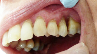 Dental Health Issues