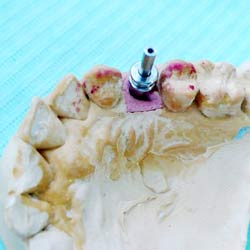 A dental implant  on a lab model in my practice