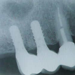 A healthy implant that has had time to heal