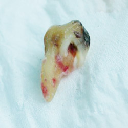 An extracted tooth with the nerve exposed