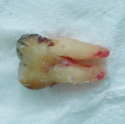 The same pulled tooth