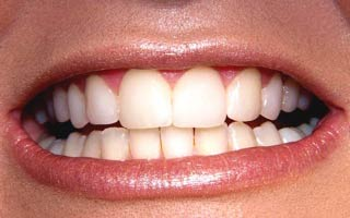 how to close gap in front teeth