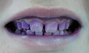 Teeth stained with disclosing tablets