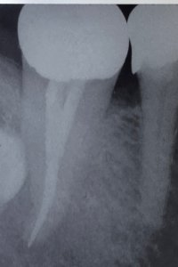 root canal danger