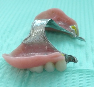 Pictures of dentures 10