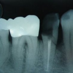 Pain After Root Canal - cracked root