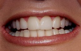 after veneers for teeth