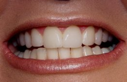 cosmetic dentist veneers 2