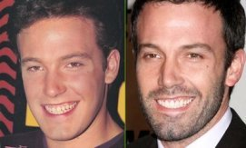 Ben Affleck teeth