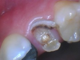 Pain After Tooth Extraction - Infection Or A Dry Socket?