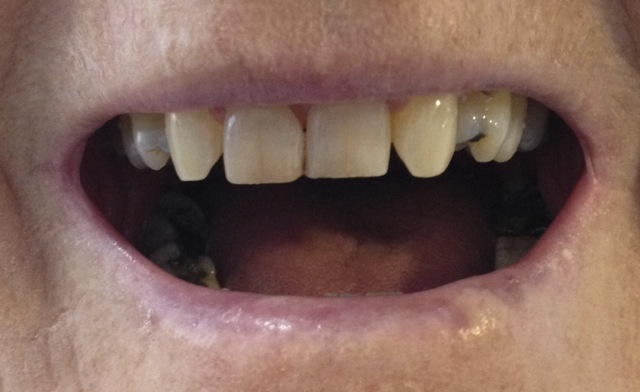 gap in front teeth - before