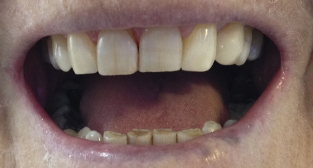 gap in front teeth -after