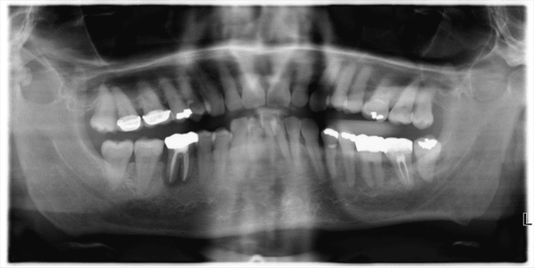 Jaw Bone Infection - OPT scan