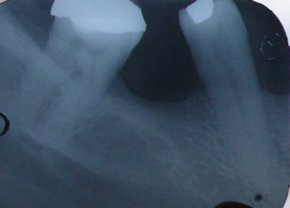 molar root canal 1