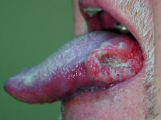 tongue cancer pictures 1