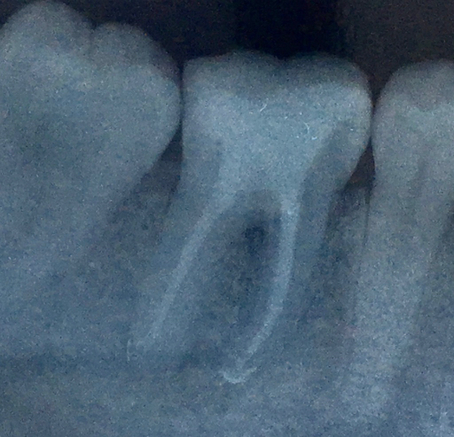 root canal failure