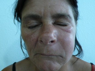 jaw bone infection causing swollen face