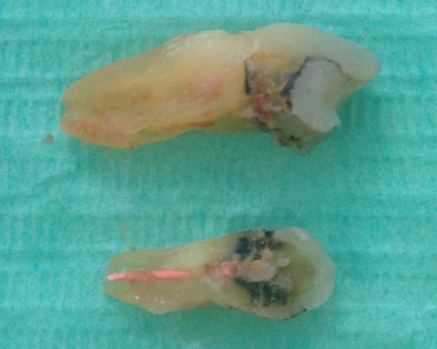 cracked tooth root photo 14