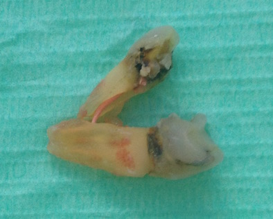 cracked tooth root photo 13
