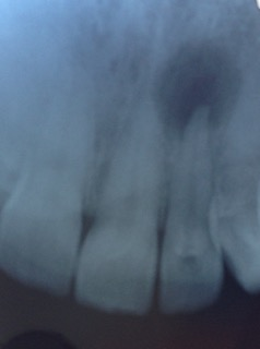 Jaw Bone Infection - on root tip
