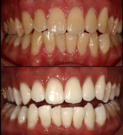 best teeth whitener - before and after photos