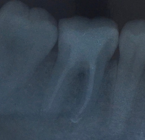 root canal complications