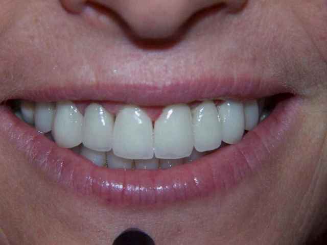 tooth pain after crown - 8 front crowns