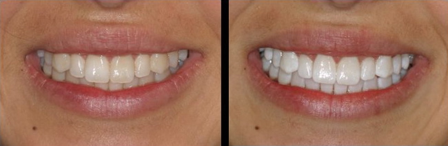 Before and after photos of tooth whitening