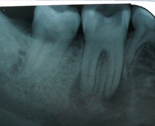 jaw bone infection from a molar