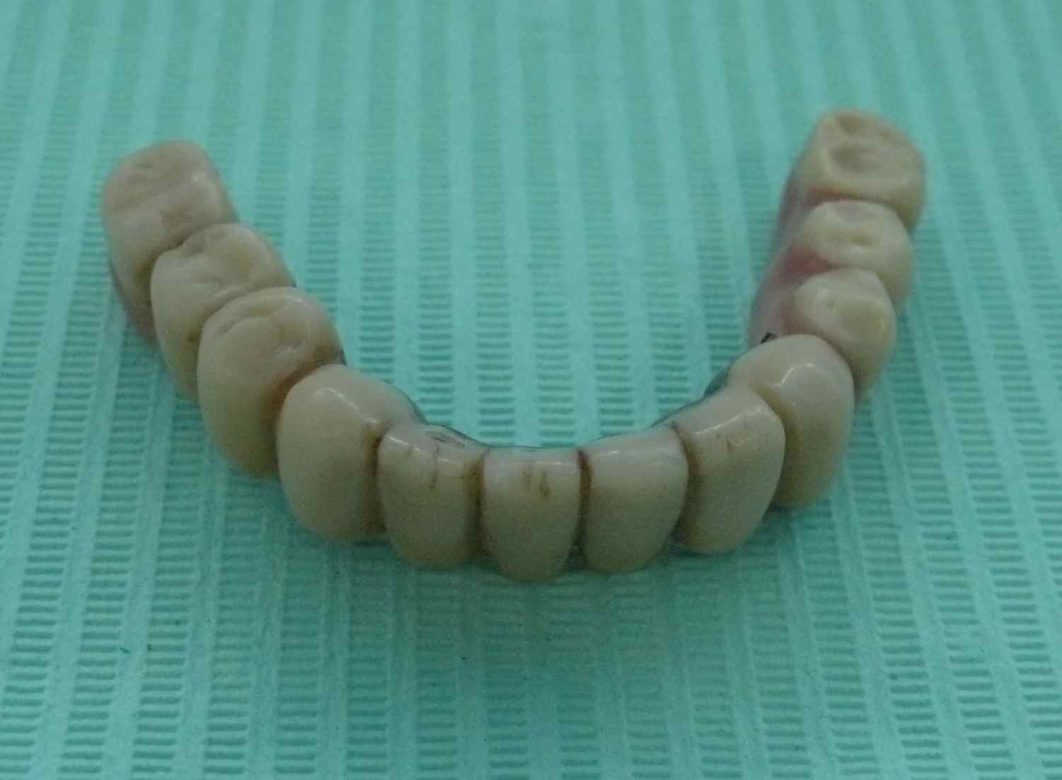 A full lower denture from above