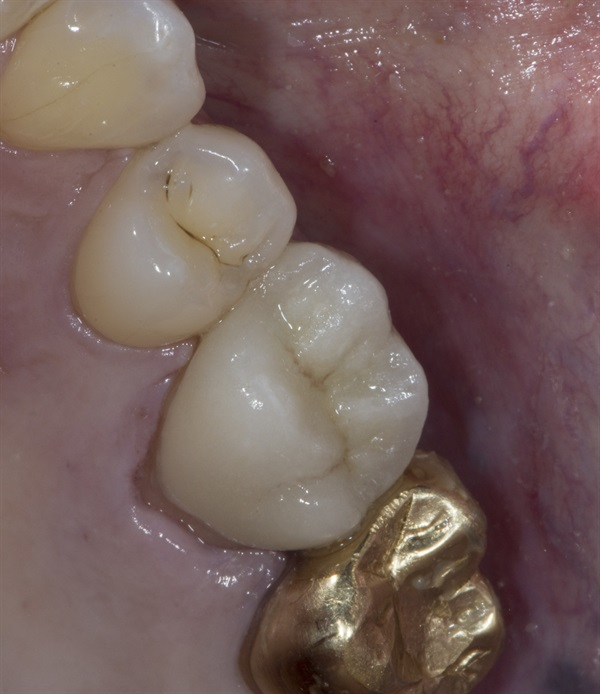Tooth pain after crown