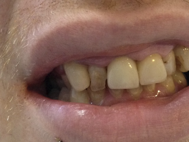 dental composite bonding - before