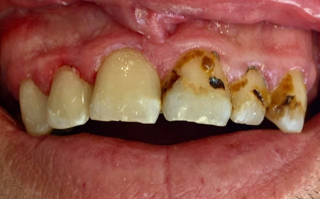 Six upper front teeth with the left 3 restored and the right 3 still stained and decayed, before treatment.