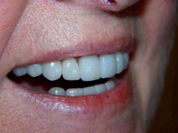 Dental crowns on the front teeth, close up