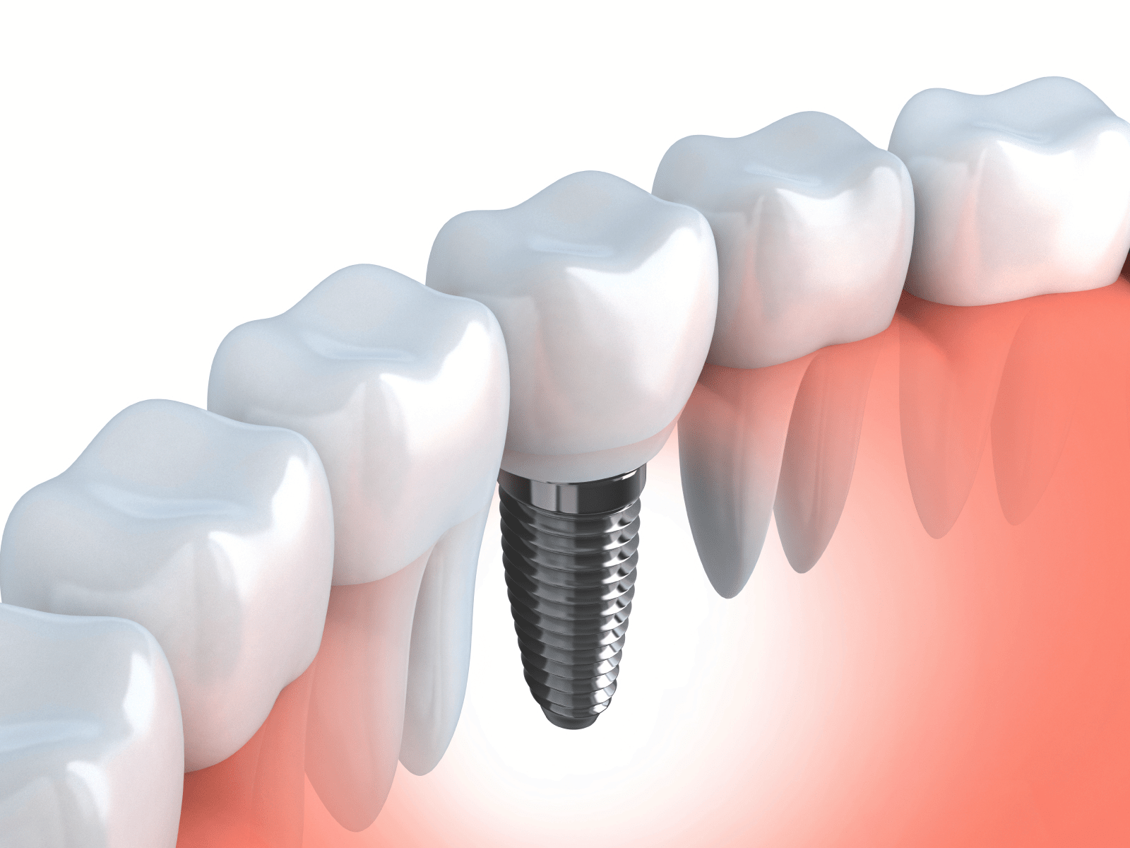 Illustration of a dental implant in the jaw