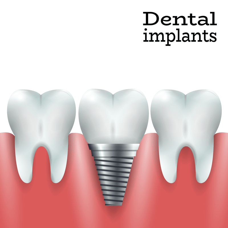 Artwork of a dental implant in the jawbone