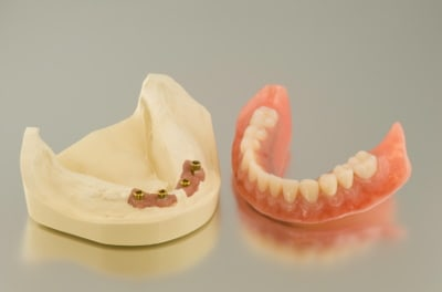 A lower acrylic full denture and its laboratory model, with 4 holes for screws to fit it to dental implants