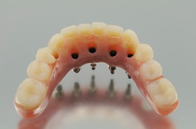 dental implant dentures - from the inner side