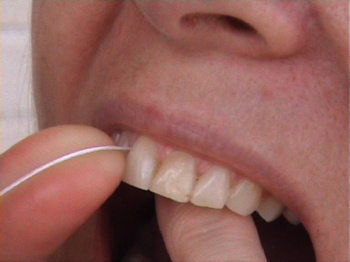 who invented dental floss?