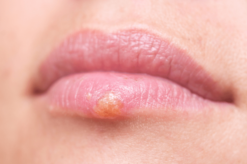 Close up of a herpes sore on a lower lip
