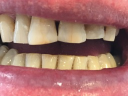 gap in front teeth - after