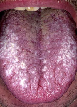 white patches on tongue