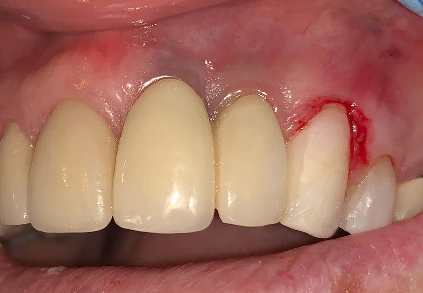 Metal implant showing grey under the gum