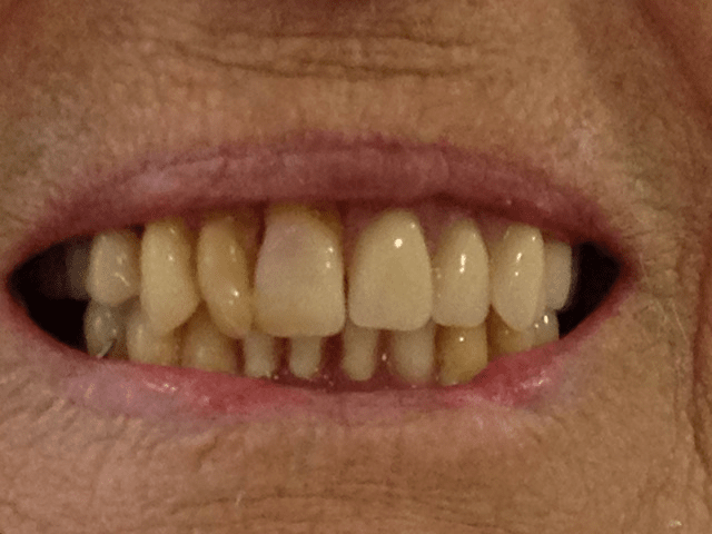 The missing front teeth have been replaced with a denture.