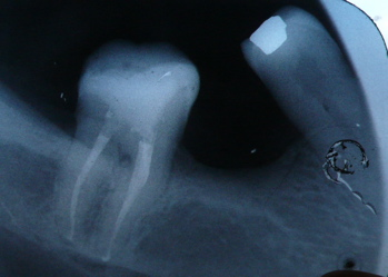 molar root canal after